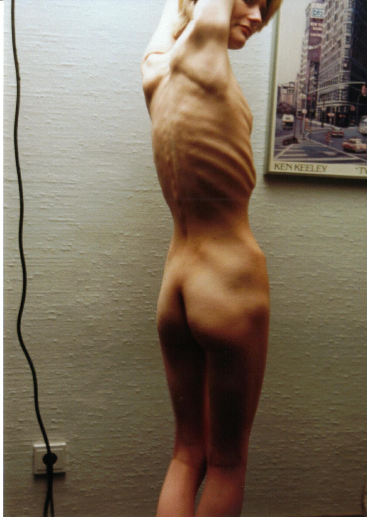 ANOREXIC NUDE PHOTOS picture